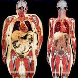 XRAY OF VISCERAL FAT VS SUBCUTANEOUS